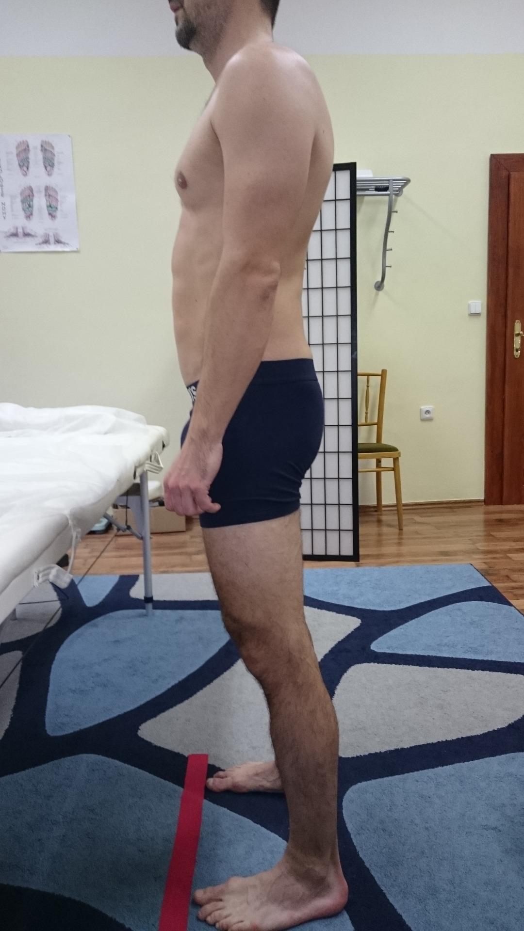 osa těla by měla procházet přes zvukovod, střed ramene, střed pánve a 1cm před kotník. Tady je osa těla značně posunutá dopředu. Což extrémně zatěžuje hlavně bederní páteř. Vadné držení těla je příčina vzniku výhřezu plotének.